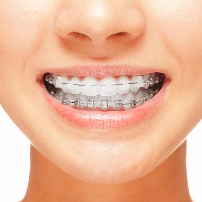 Orthodontic Treatments - Dental Services